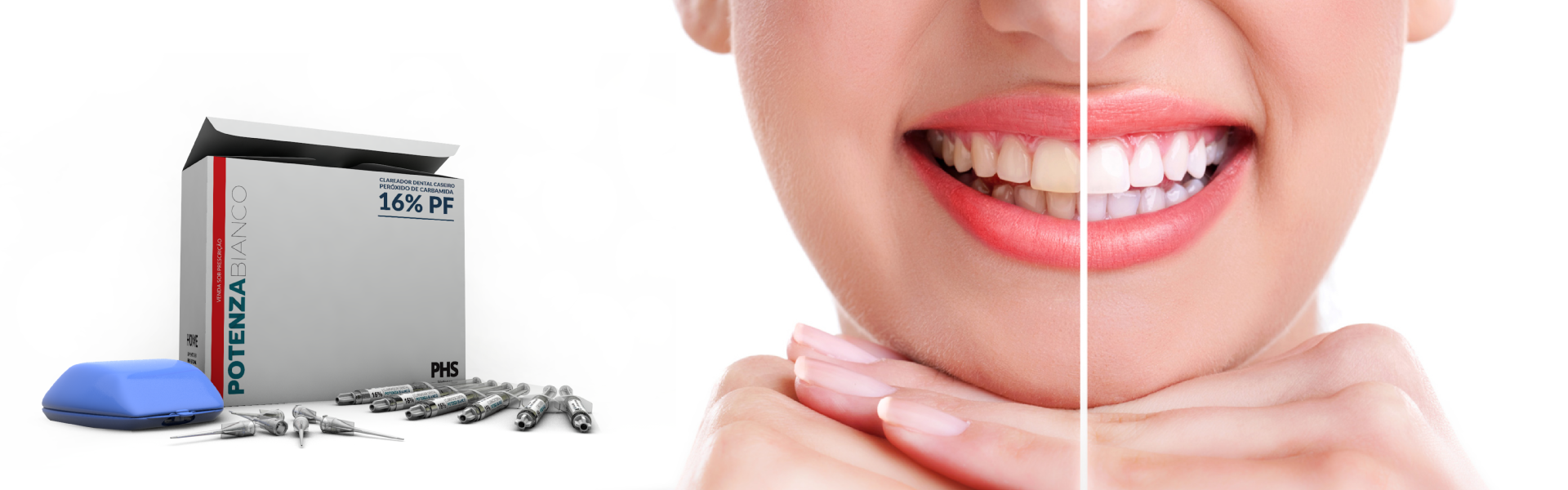 Potenza Bianco - Blanqueamiento dental